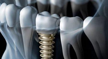marmara_dis_klinigi_dental_implants-673x304-380x210