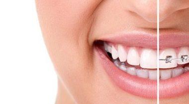 ortodontii_b-650x250-380x210